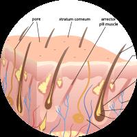 Causes of Pilonidal sinus - Puncture of hair