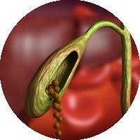 Causes of Gallstone - High bilirubin in bile