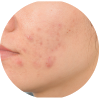 Symptoms of PCOS or PCOD - Acne