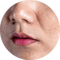 Causes of Facelift - Exposure to sun