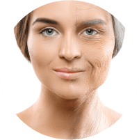 Symptoms of Facelift - Lax and sagging skin