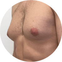 Symptoms of Gynecomastia - Discharge from nipples in one or both