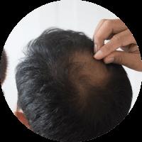 Symptoms of  Hair Transplant - Gradual thinning of hair