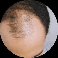 Symptoms of  Hair Transplant - Sudden lose of hair