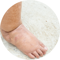 Symptoms of  Diabetic Foot Ulcer - Swelling and Discoloration Around the Wound