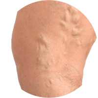 Symptoms of Varicose Vein - Bulged or Twisted Veins