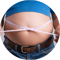 Causes of Varicose Vein - Overweight