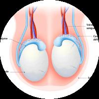 Symptoms of Varicocele -  Lump Formation in Scrotum