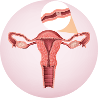 Causes of Female Infertitlity - Block in the Fallopian Tubes