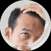 Symptoms Of Male Fertility - Hair Growth Changes