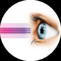 Causes of Cataract Surgery - UV Radiations