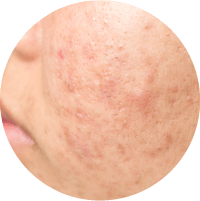 Symptoms of PCOS or PCOD Acne Treatment In Chennai