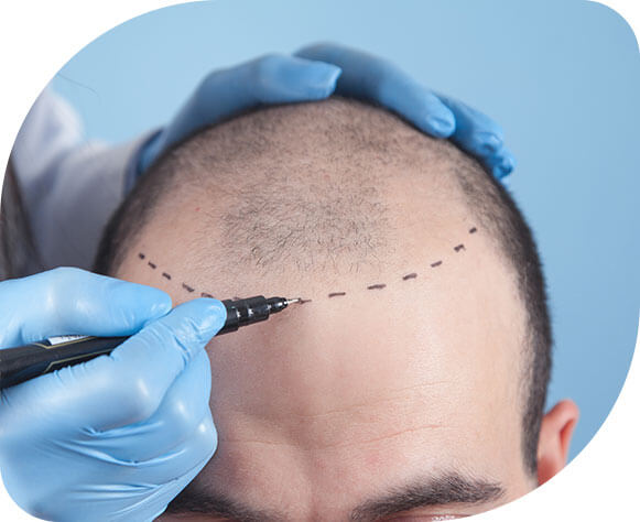 Hair transplant treatment - Treat Pa